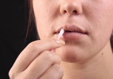 herpes munsår behandling